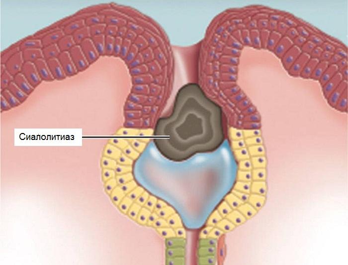 Болит мышца под челюстью слева. Почему болит лимфоузел под челюстью справа
